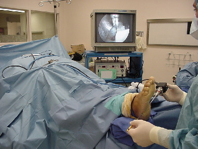 Arthroscopic Surgery Of The Foot Amp Ankle Montebello And